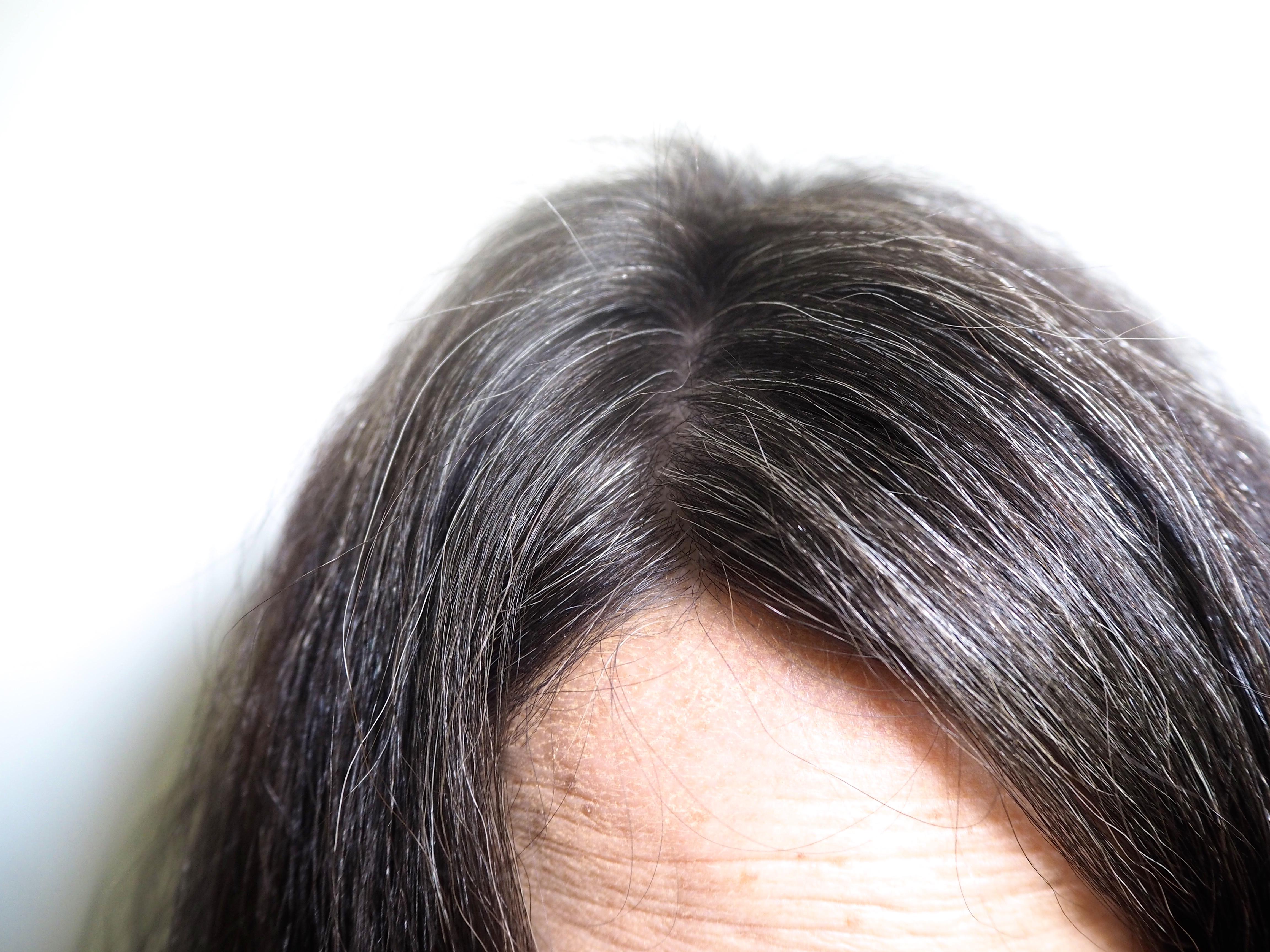 Mes Cheveux Blancs [8 Mois Apru00e8s] - La Reine De Lu0026#39;iode